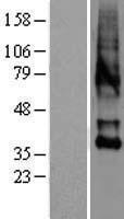 NBL1-14027 - Oxytocin Receptor Lysate