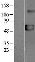 NBL1-14031 - P2X5 Lysate