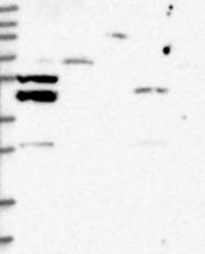 NBP1-82438 - P2RY10 / P2Y10