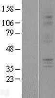 NBL1-14049 - P2Y6 Lysate