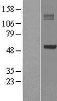 NBL1-14050 - P4HA1 Lysate