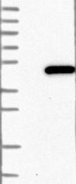 NBP1-87355 - PABPC5