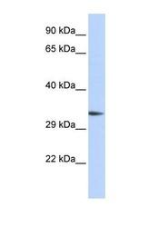 NBP1-54802 - PACRG