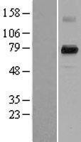 NBL1-14061 - PAD4 Lysate