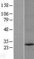 NBL1-14065 - PAFAH1B2 Lysate