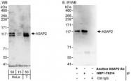 NBP1-78214 - ASAP2 / DDEF2
