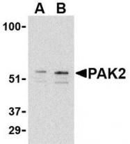 NBP1-76720 - PAK2