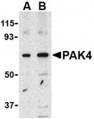 NBP1-77236 - PAK4