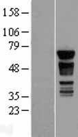 NBL1-14081 - PAK4 Lysate