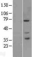 NBL1-14083 - PAK6 Lysate