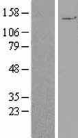 NBL1-14086 - PALB2 Lysate