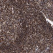 NBP1-89438 - PAN3