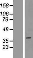 NBL1-14098 - PAQR5 Lysate
