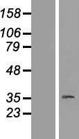 NBL1-14101 - PAQR8 Lysate