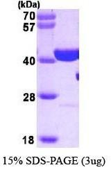 NBP1-37088 - PARP1