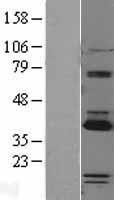 NBL1-14114 - PARP16 Lysate
