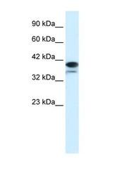 NBP1-52950 - PARP6