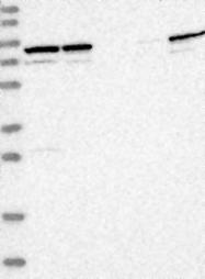 NBP1-87333 - PARP6