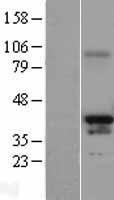 NBL1-14130 - PAX4 Lysate