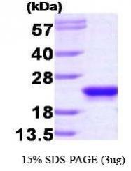 NBP1-30224 - PEBP1 / RKIP