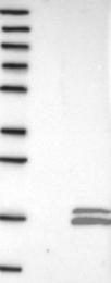 NBP1-85281 - PCBD2