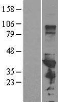 NBL1-14142 - PCBP1 Lysate