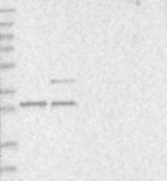 NBP1-83241 - PCBP2 / hnRNP-E2