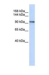 NBP1-59209 - PCDH1