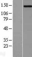 NBL1-14149 - PCDH11Y Lysate