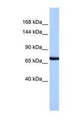NBP1-60065 - PCDH15