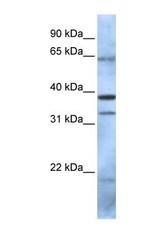 NBP1-55283 - PCGF5 / RNF159