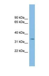 NBP1-55372 - PCGF6 / RNF134