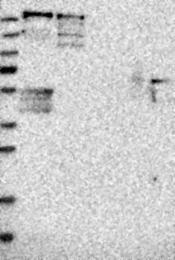 NBP1-87196 - PCM1