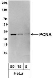 NBP1-71795 - PCNA
