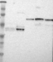 NBP1-86563 - PCYT1B