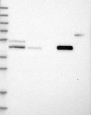 NBP1-83952 - PCYT2
