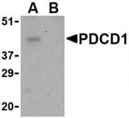 NBP1-77277 - CD279 / PD1