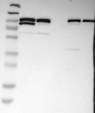 NBP1-90201 - ALIX / PDCD6IP