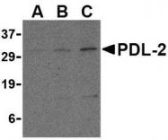 NBP1-76770 - CD273 / PDL2