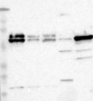 NBP1-83302 - PDCD4