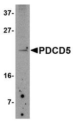 NBP1-76991 - PDCD5