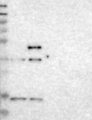 NBP1-82656 - PDCD5