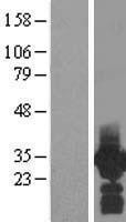 NBL1-14212 - PDCL3 Lysate