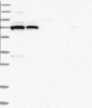 NBP1-85919 - PDE11A