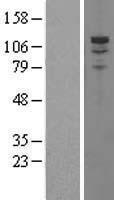 NBL1-14217 - PDE3A Lysate