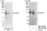 NBP1-46182 - PDE3A