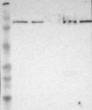 NBP1-86139 - PDE5A