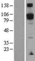 NBL1-14225 - PDE5A Lysate