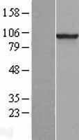 NBL1-14227 - PDE6 beta Lysate