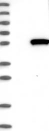 NBP1-85987 - PDE7B